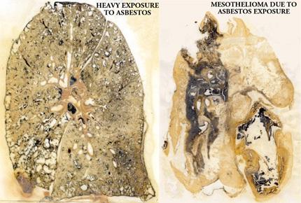 Lung asbestos.jpg